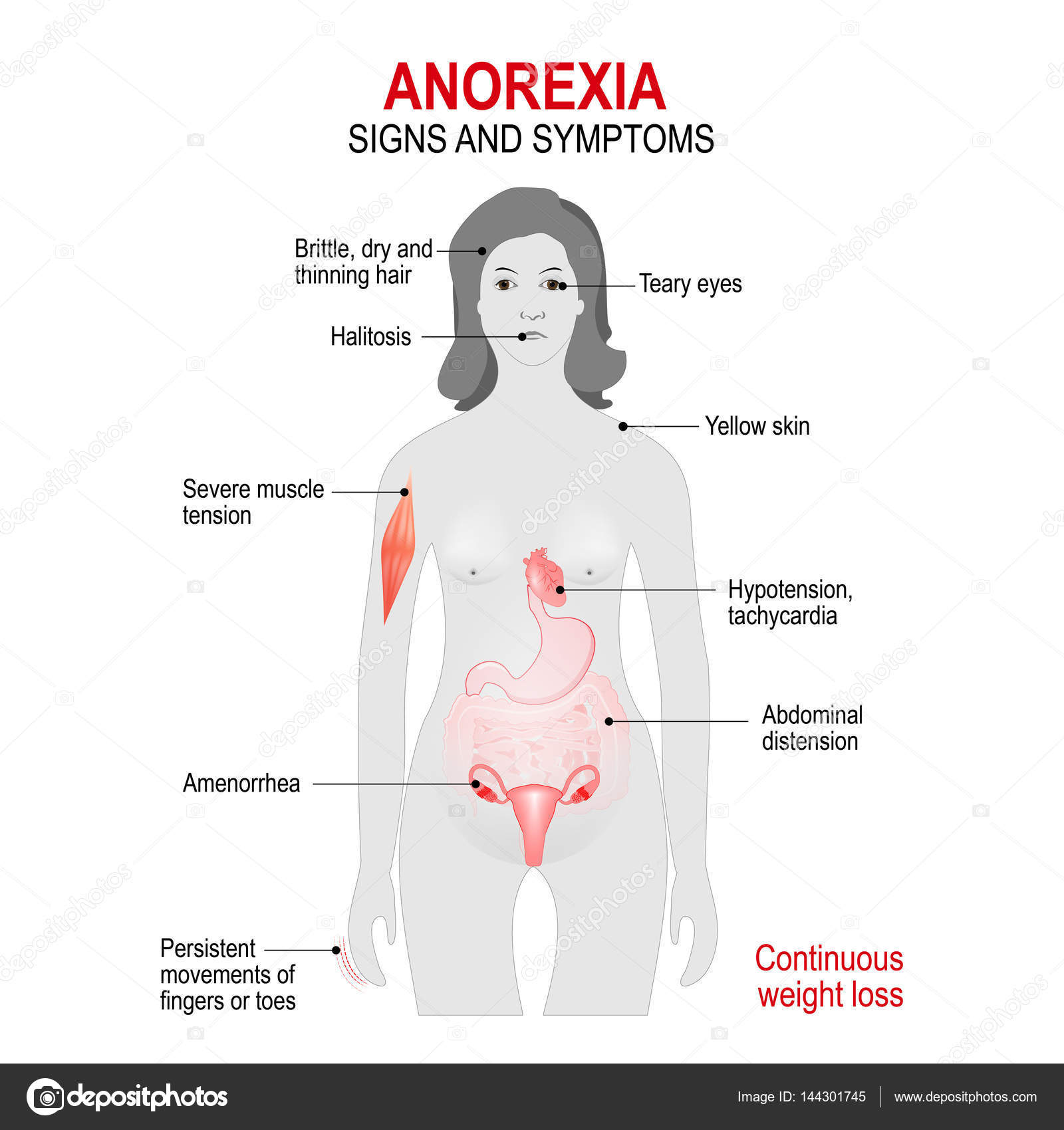 an analysis on the disorder anorexia nervosa and bulimia Anorexia nervosa a restriction of energy intake relative to requirements  diagnostic riteria for eating disorders—dsm v other eating & feeding disorders.