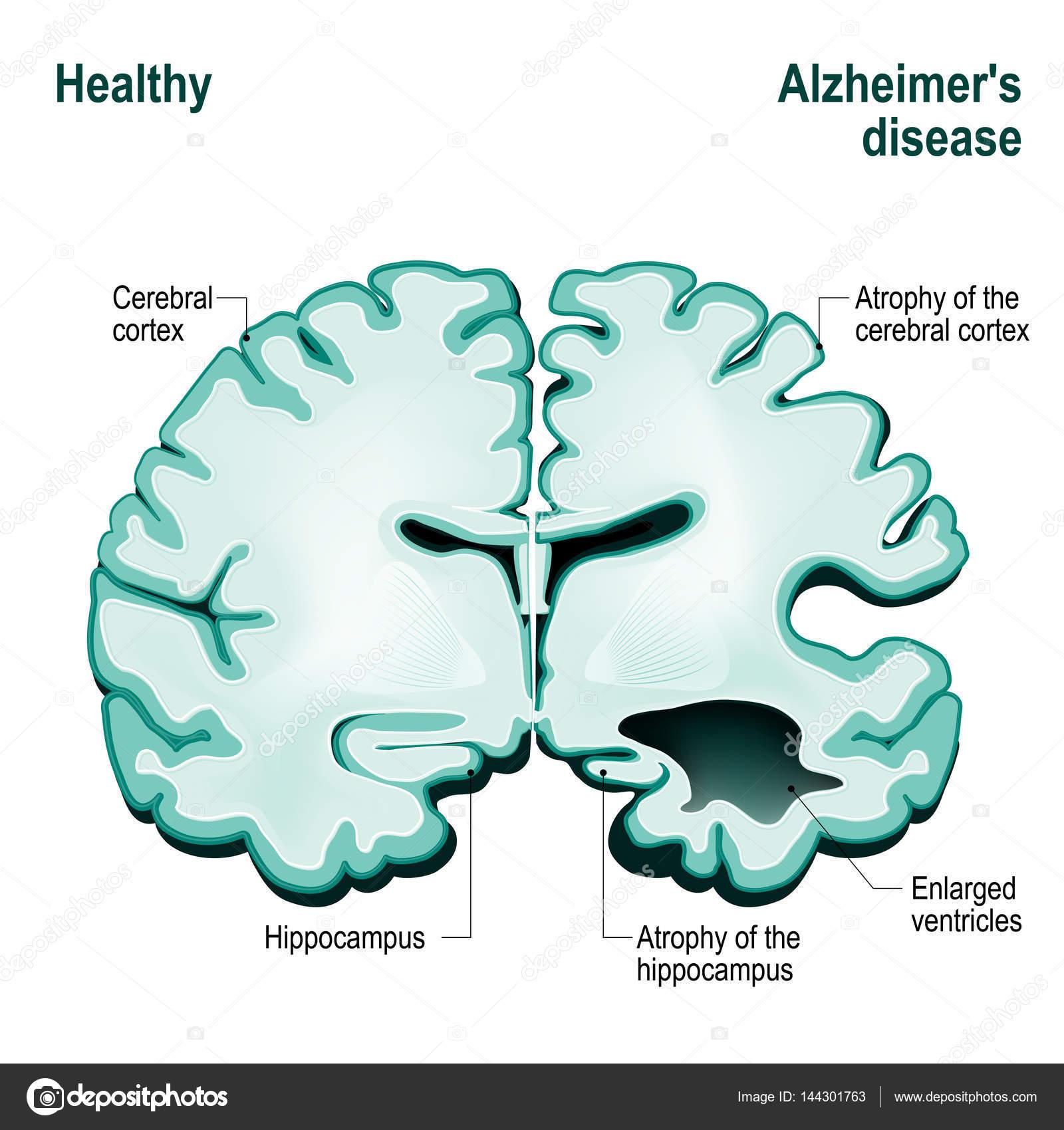 Querschnitt des menschlichen Gehirns — Stockvektor © edesignua ...