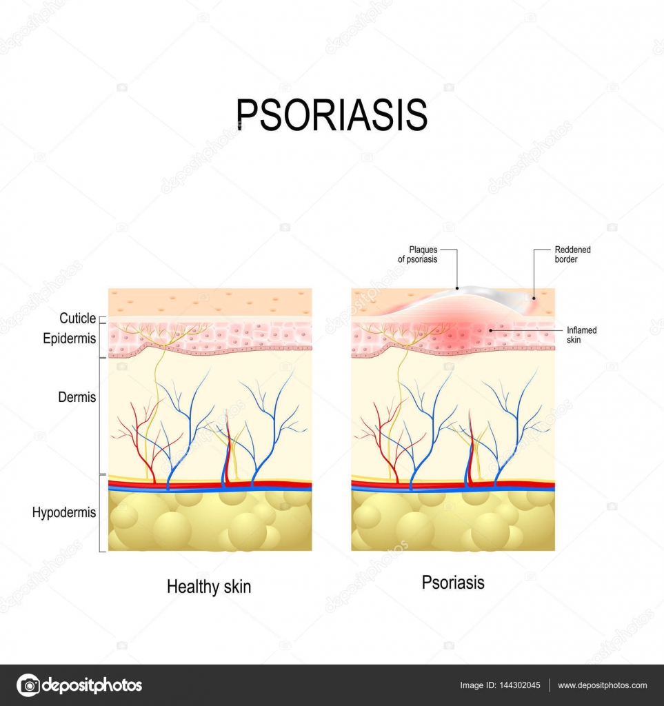 Psoriasis. Capa de la piel humana de cerca — Archivo Imágenes ...
