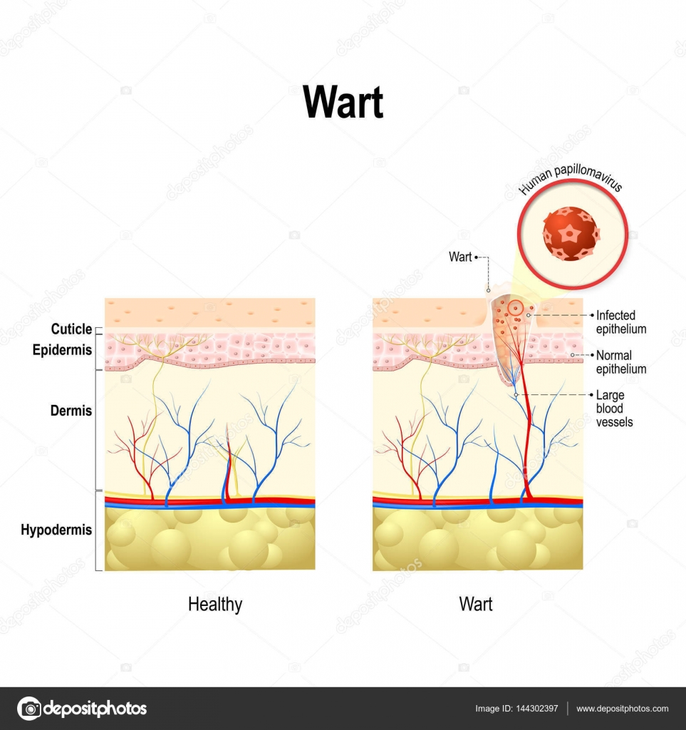 wart cross section of the human skin with human papillomavirus Anatomy of Wart wart cross section of the human skin with human papillomavirus infection \u2014 stock vector