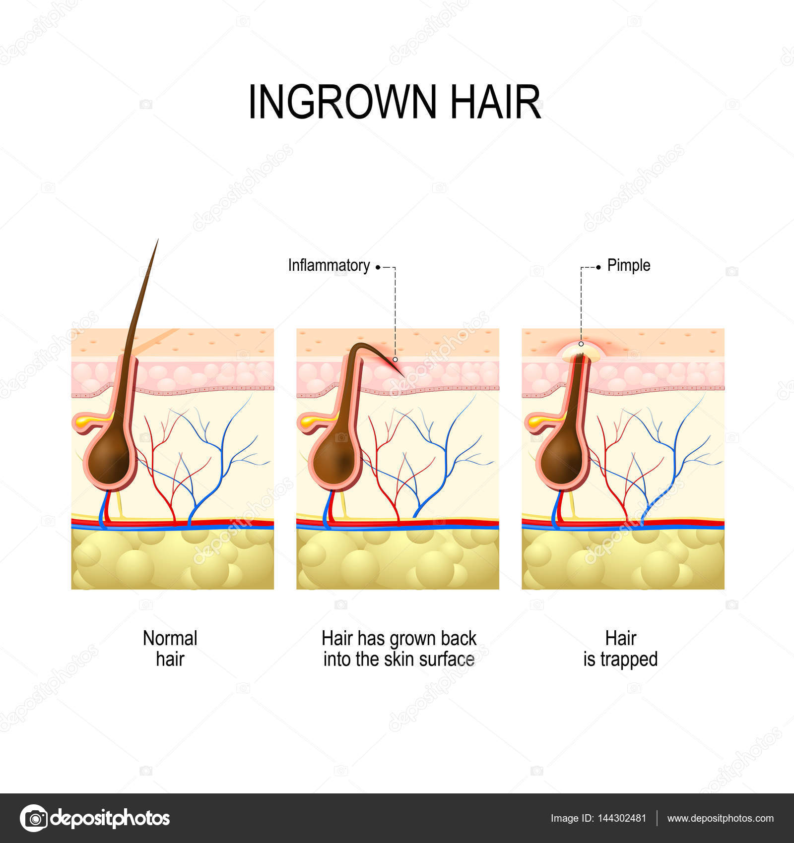 Ingrown hair after hair removal and shaving stock vector ingrown hair after hair removal and shaving stock vector pooptronica Choice Image