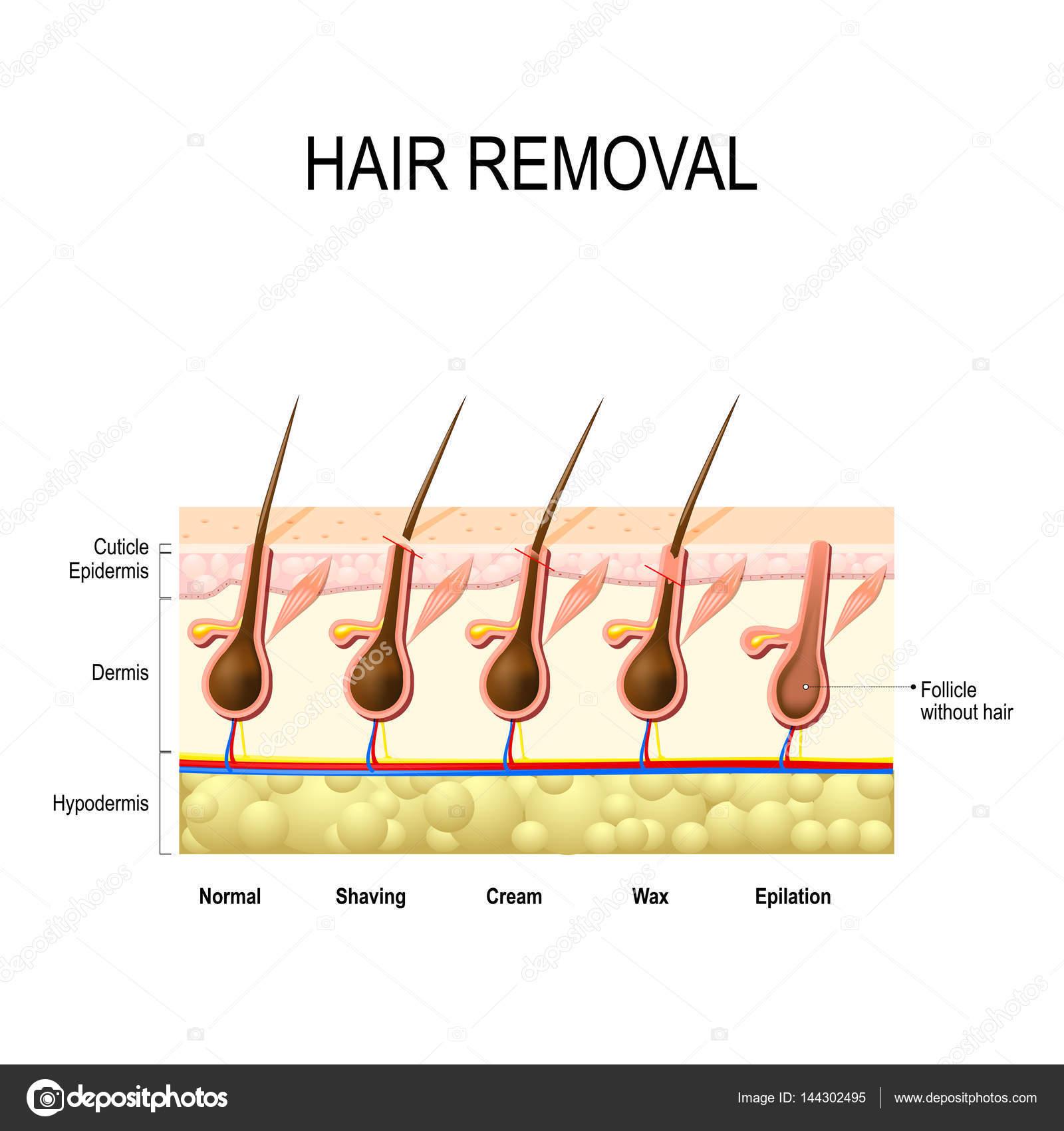 Depilación con cera, crema, depilación y afeitado — Vector de stock ...