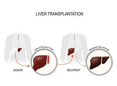 Liver transplantation or hepatic transplantation