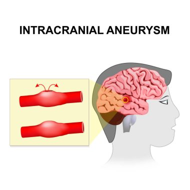 Intracranial aneurysm. cerebral or brain aneurysm.
