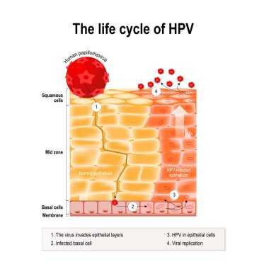 life cycle of hpv in the human epithelium.