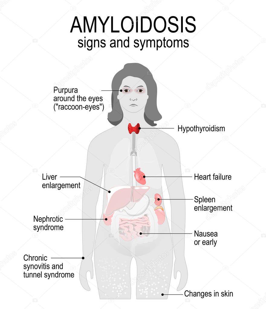 アミロイドーシス。徴候と症状. — ストックイラストレーション
