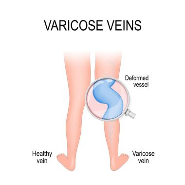 varicose vein and normal vein