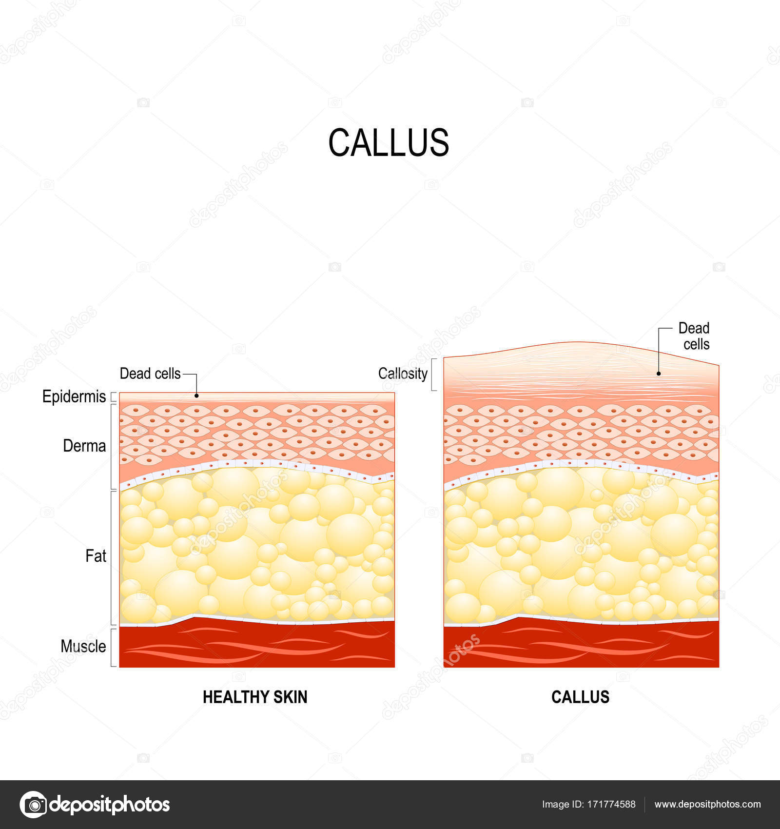 Kallus. Schwiele. Der Unterschied zwischen gesunder Haut und Haut ...