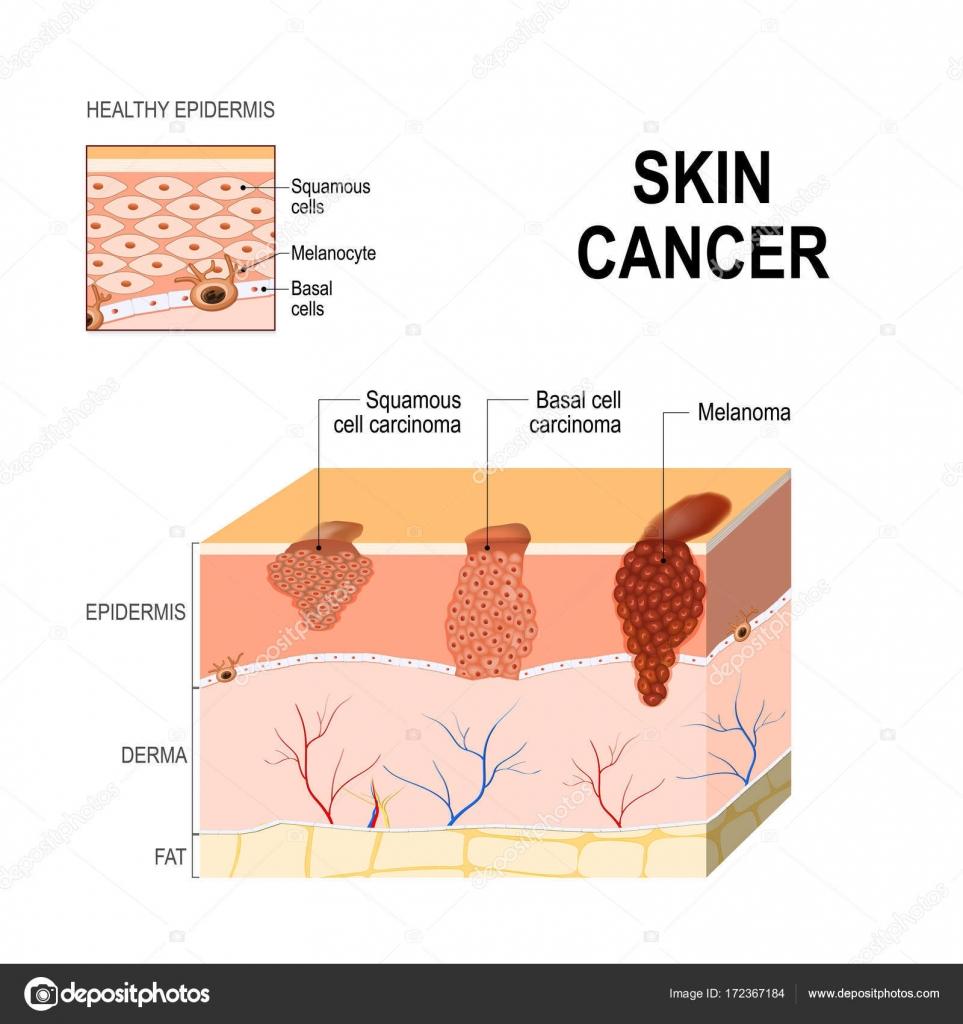 Cáncer de piel. Carcinoma de células escamosas, cáncer de células ...