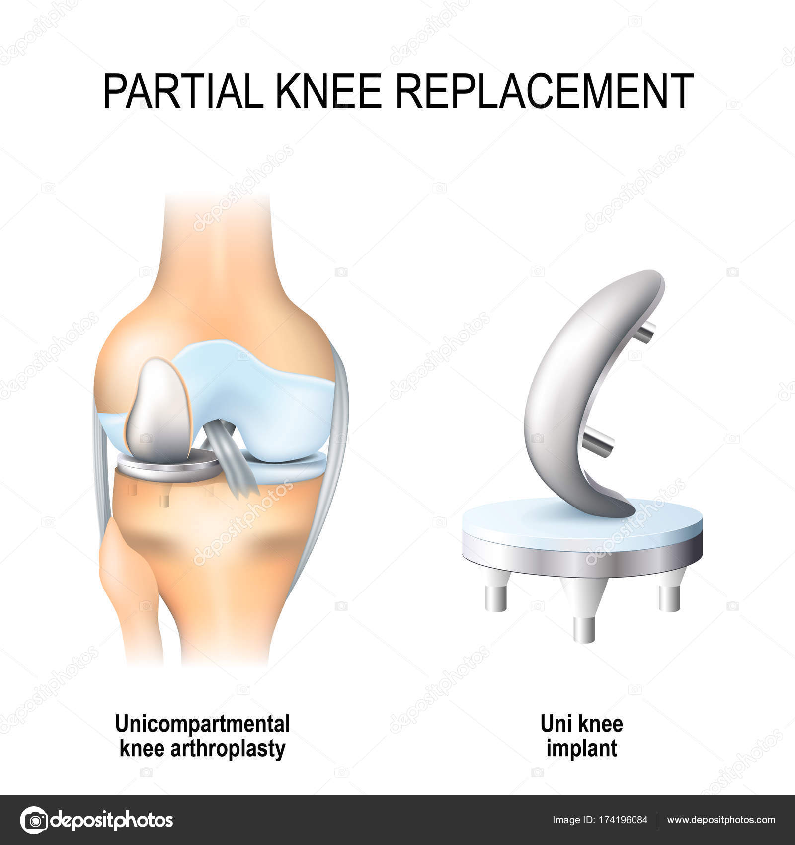 Partial knee replacement stock vector edesignua 174196084 partial knee replacement unicompartmental knee arthroplasty and uni knee implant vector by edesignua publicscrutiny Image collections