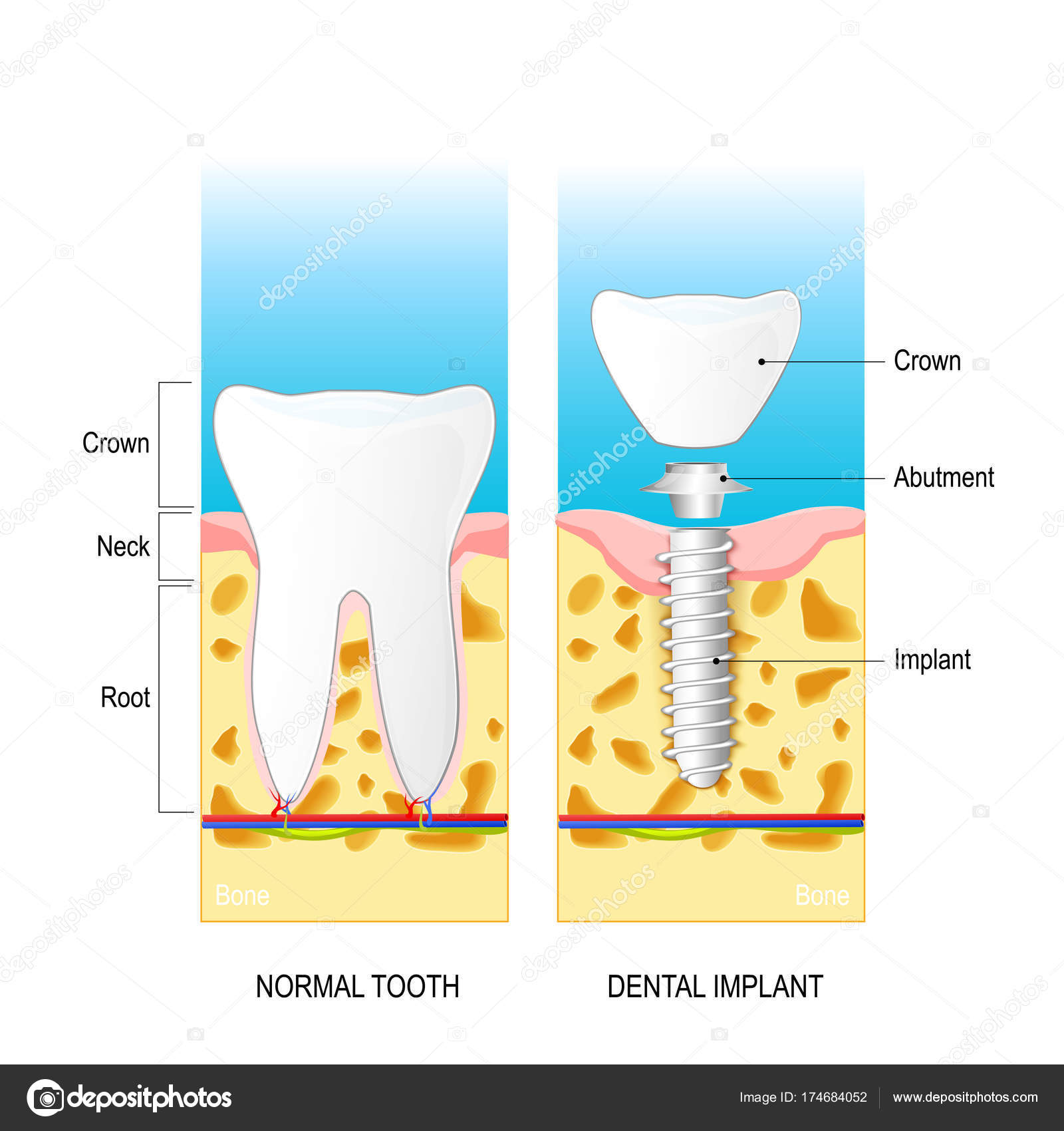 dental implant Vector diagram for medical use — Stock Vector ...