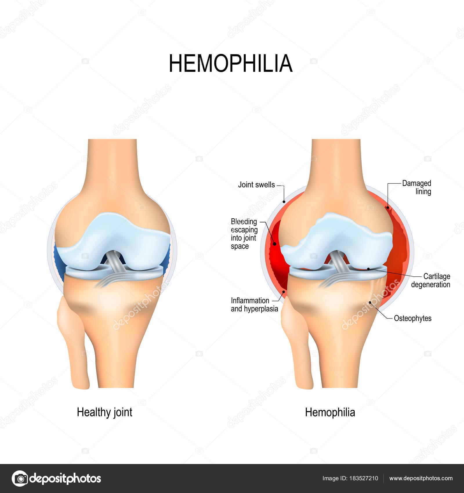 menselijke knie met hemofilie en gezonde gezamenlijke — Stockvector ...