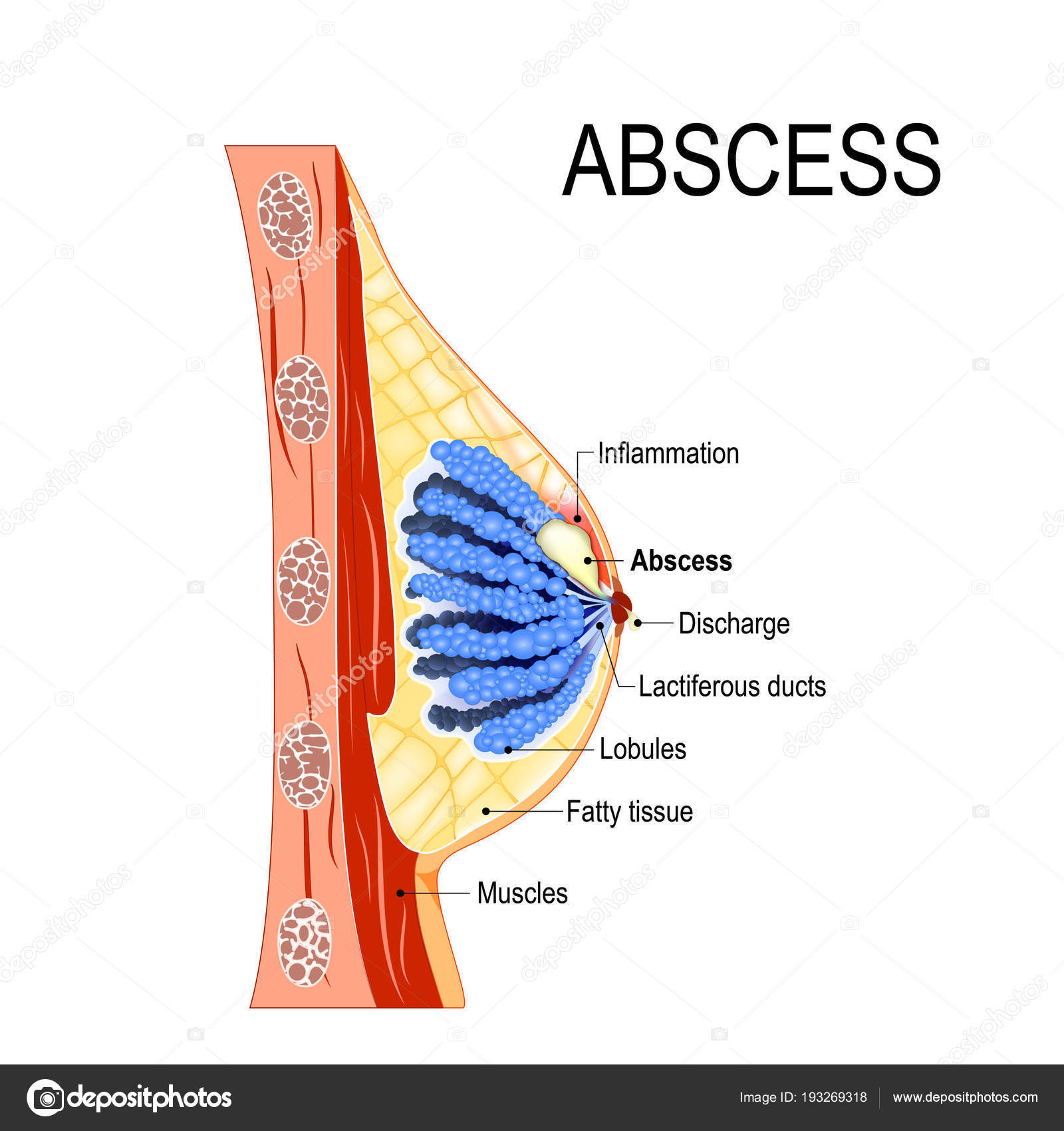 abscess. Cross-section of the mammary gland with inflammation ...