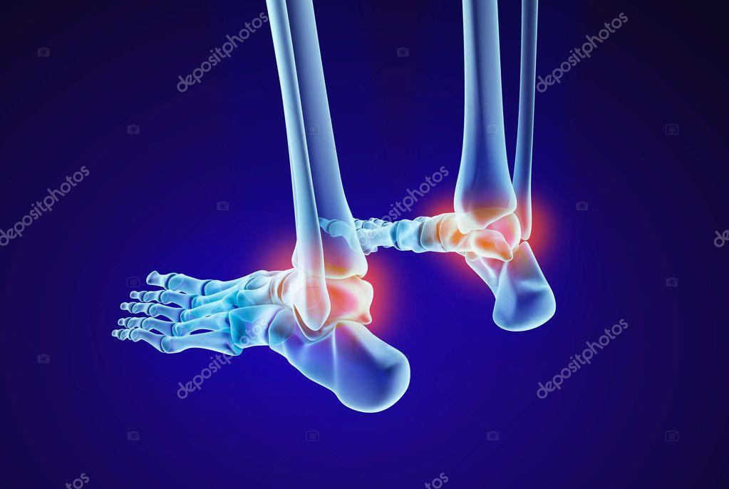 Esqueleto pie - injuryd del hueso astrágalo. Vista de la radiografía ...
