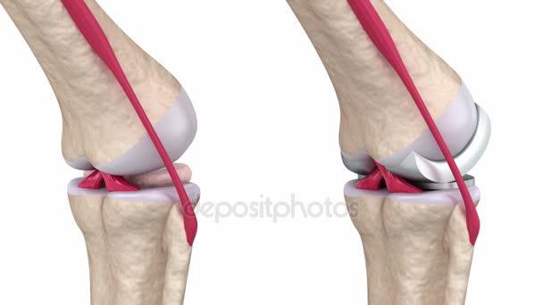 Knie- und Titanscharniergelenk. Isoliert auf weiß