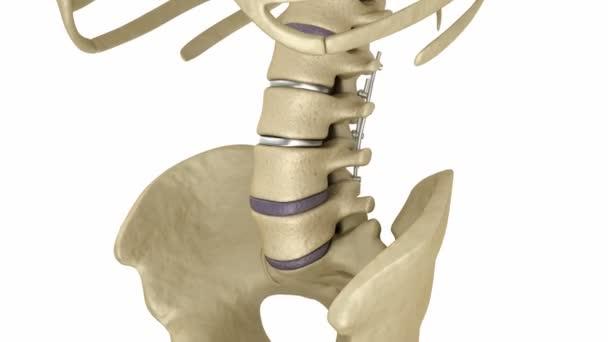 Sistema di fissazione spinale - staffa di titanio. Animazione 3d dente medicalmente precise