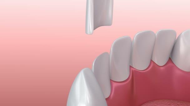 Zubní fazety: Porcelán dýhy instalační procedury. 3D animace