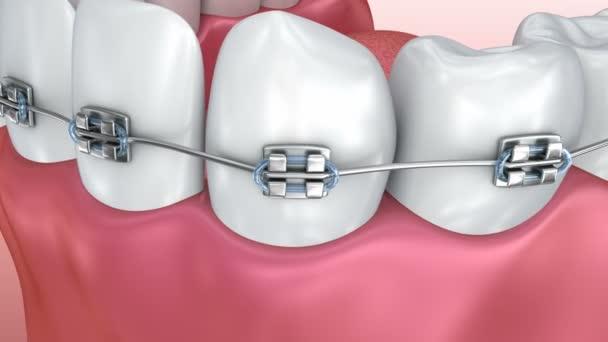 Zähne mit Zahnspangen isoliert auf weiß. medizinisch korrekte 3D-Animation.