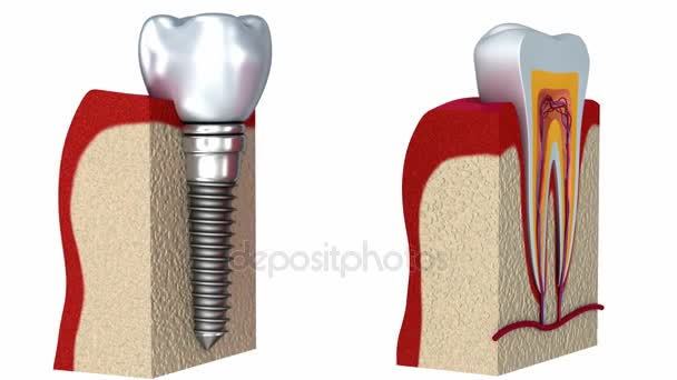 Anatomy Of Healthy Teeth And Dental Implant In Jaw Bone 3d