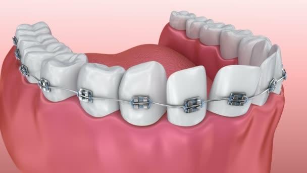 Zähne mit Zahnspangen-Alignment-Prozess. Medizinisch genaue 3d animation
