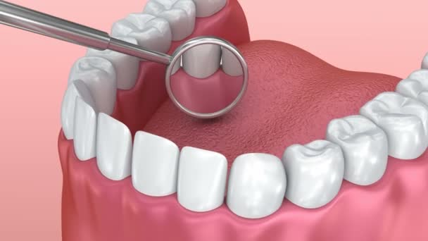 Teeth inspection with mirror. Medically accurate tooth 3D animation.