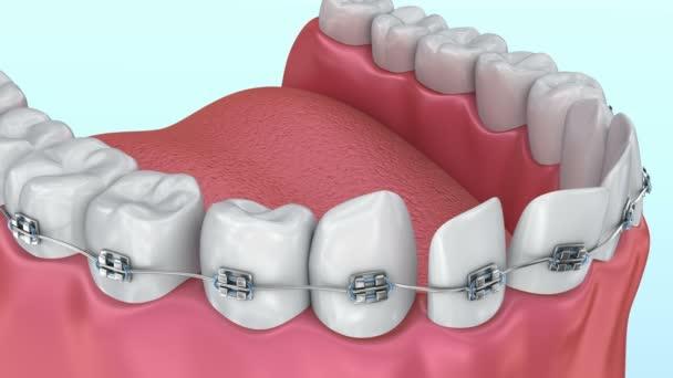 Zähne mit Zahnspangen Ausrichtungsprozess. medizinisch korrekte 3D-Animation.