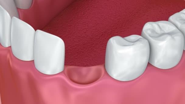 Einbau von Zahnimplantaten, medizinisch korrekte 3D-Animation