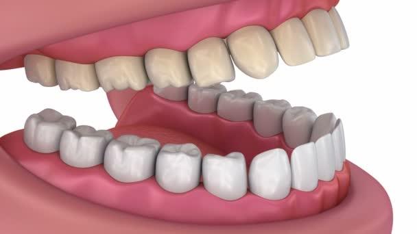 Zahnweiß-Prozess. medizinisch korrekte 3D-Animation der Zähne.