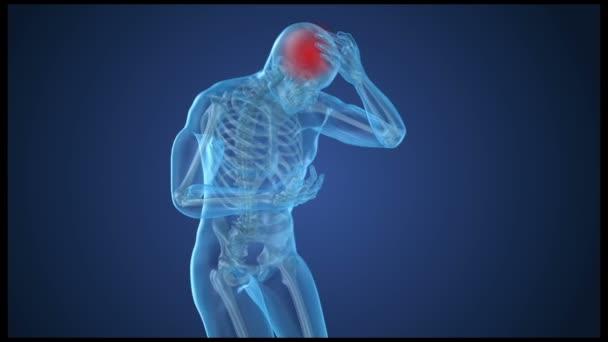 https://st3.depositphotos.com/1238677/18281/v/600/depositphotos_182815740-stock-video-head-pain-attack-man-suffering.jpg