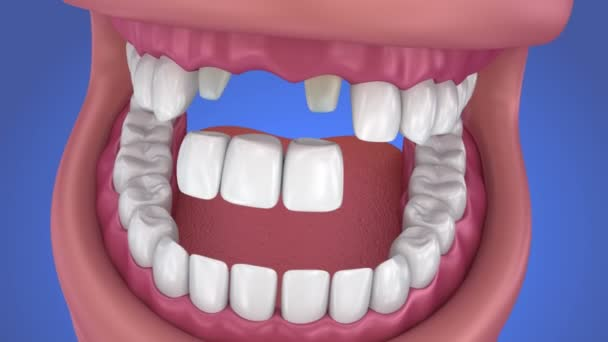 Tooth supported fixed bridge. Medically accurate 3d animation