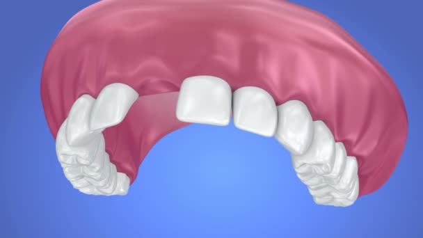 Single Missing Tooth - Removable partial denture. 3d animation