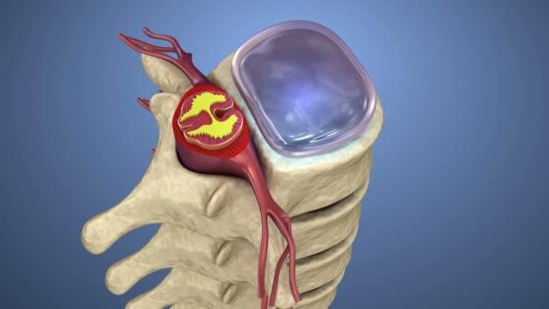 Midollo spinale sotto pressione di gonfiamento disco, animazione 3d