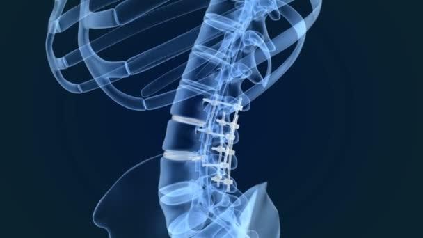 Sistema di fissazione spinale - staffa di titanio. Animazione vista dei raggi x