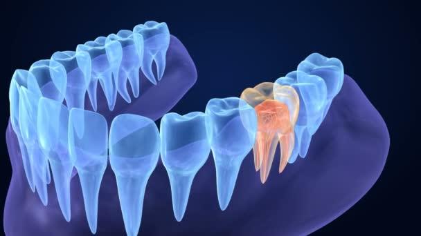 durchsichtige Zähne. Endodontie innere Struktur der Backenzähne. 3D-Animation