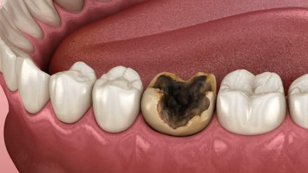 Extraktion von durch Karies beschädigten Backenzähnen. medizinisch korrekte 3D-Animation der Zähne