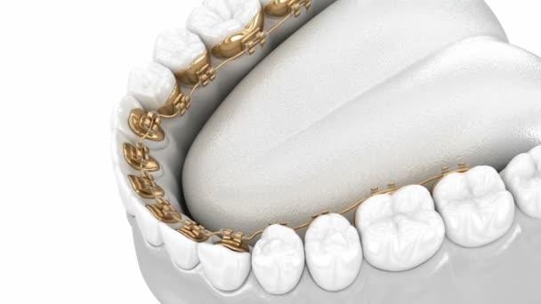 Lingualspange. 3D-Animationskonzept der goldenen Zahnspange