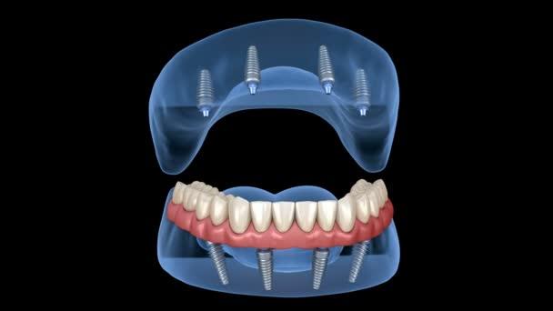 Maxilární a Mandibulární protéza s gumou Vše na 4 systému podporované implantáty. Lékařsky přesná 3D animace lidských zubů a zubů