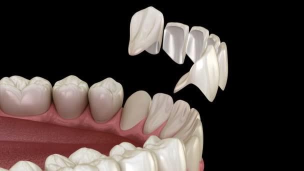 Postup instalace veneer na ústřední řezák a boční řezák. Mediálně přesný zub 3D animace