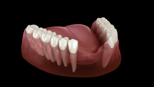 Most čelních zubů podepřený implantáty