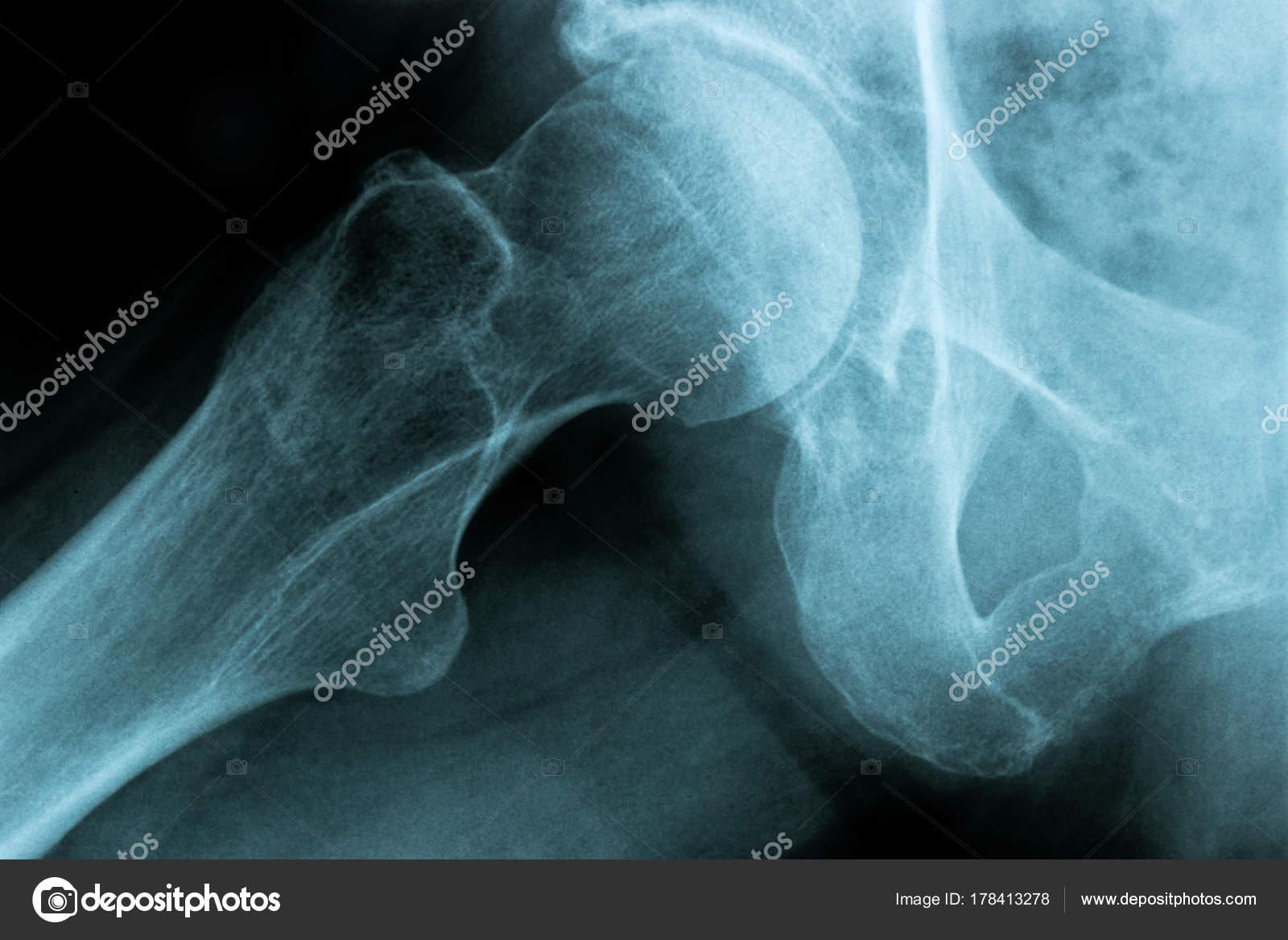 Röntgenbild eines menschlichen Brust Hüftgelenk Knochens — Stockfoto ...