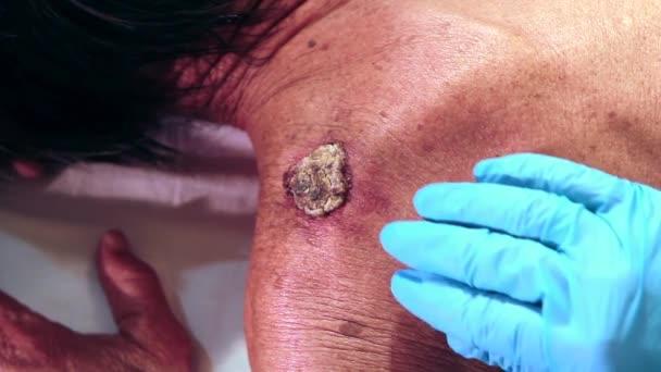 Untersuchung eines Tumors oder Melanoms auf der Rückseite eines Schmerzmittels durch einen Arzt mit blauen Handschuhen und medizinischen Utensilien