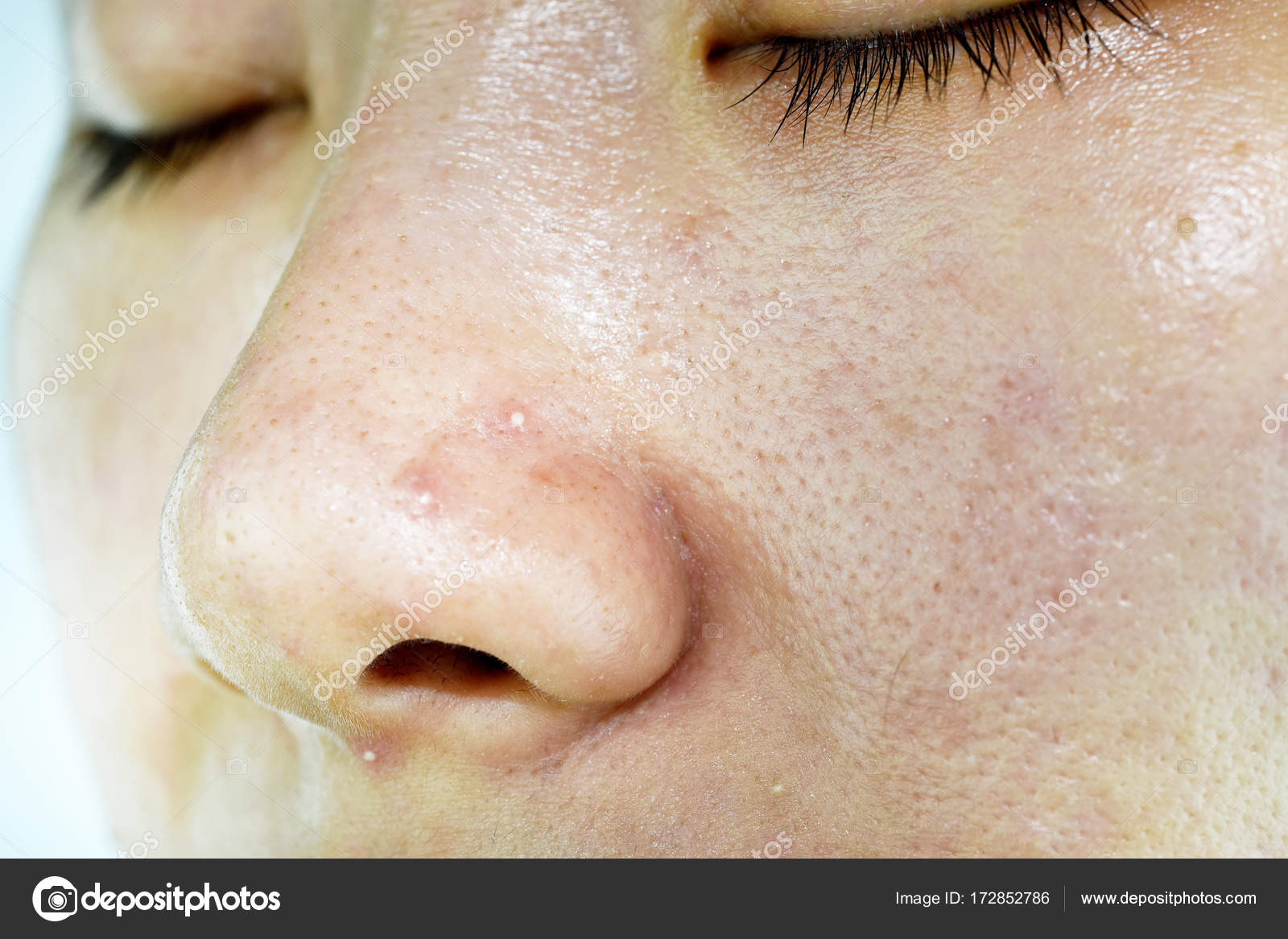 Skin Problem With Acne Diseases Close Up Woman Face With Whitehead Pimples On Nose Scar And Oily Greasy Face Beauty Concept Stock Photo C Artfully79 172852786