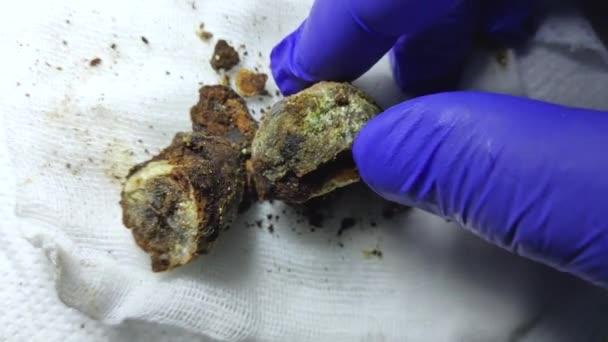 Žlučové kameny se zavírají. Kalkulace v rukou chirurga po laparoskopii, chirurgie k odstranění žlučníku. Komplikace onemocnění žlučových kamenů. Broušené žlučové krystaly.
