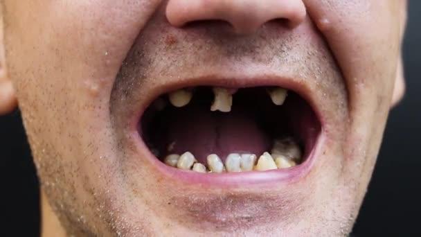 Der Mann hat verfaulte Zähne, Zähne fielen aus, gelbe und schwarze Zähne schmerzen. schlechter Zustand der Zähne, Erosion, Karies der Arzt bereitet den Patienten auf die Behandlung vor