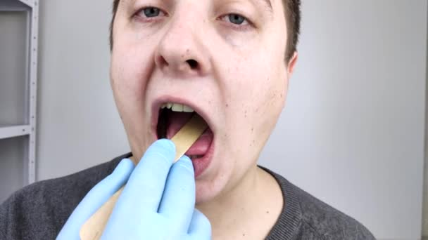 An otolaryngologist examines a man throat with a wooden spatula. A possible diagnosis is inflammation of the pharynx, tonsils or pharyngitis. The concept of treatment and prevention of throat disease