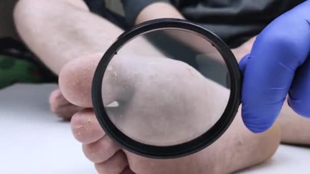 Ein Arzt in blauen Medizinhandschuhen untersucht den Pilz am Bein des Patienten mit einer Lupe. Untersuchung im Krankenhaus. Makrovideo eines Fußpilzes.
