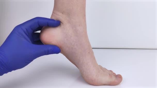 Ein Orthopäde untersucht das Bein einer Frau. Fersenschmerzen, Sehnendehnung, Entzündungen, Fersensporn. Behandlungskonzept für Fußkrankheiten
