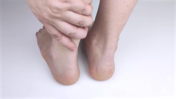 Ortopedický lékař vyšetřuje ženskou nohu. Achillovy nemoci šlach a kotníků. Zánět podpatku a nohy, achilobursitida a achilotomie, revmatismus, ruptura šlach