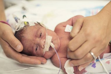 Portrait of newborn baby with pipes in nose in clinic