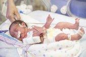 Photo Portrait of sleeping newborn baby in clinic